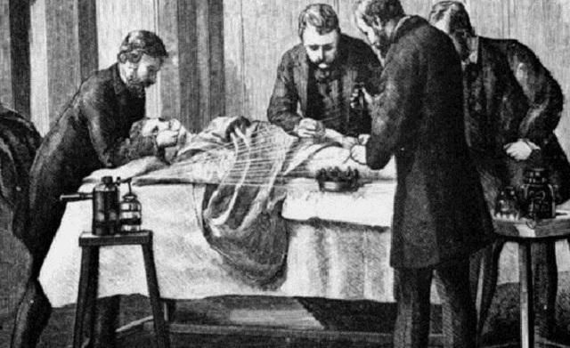cirurgias antigamente